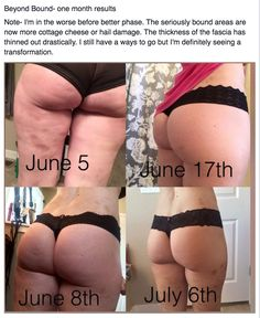 Skinny girls, chubby girls, fit girls & big girls all struggle with fascia recoil to some level. The FASCIAL DISTORTIONS caused by imbalance, old injuries, extreme weight gain or loss, impact injuries or repetitive motion LOOK LIKE CELLULITE! The FasciaBlaster® breaks up adhesions & loosens the bands that pull the skin inward. The FasciaBlaster® is for real, & I hope that you will get it & get rid of cellulite - but restore your fascia & you'll get all the health benefits!