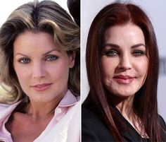 Pricilla Presley     #celebrity #surgery NOW she REALLY looks ugly!!
