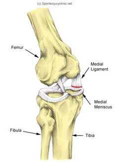 Medial+Knee+Pain | Cartilage meniscus of the knee