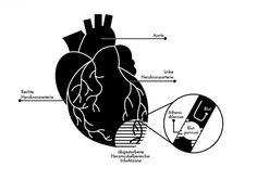 Herzinfarkt, heartattack