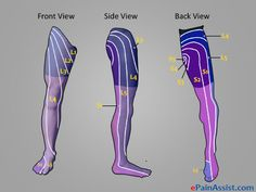 Causes of Entire Leg Pain or Sciatica Pain