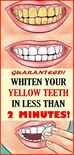 Whiten Your Yellow Teeth In Less Than 2 Minutes! Whiten Your Yellow Teeth In Less Than 2 Minutes! Whiten Your Yellow Teeth In Less Than 2 Minutes! Health Tips For Women, Health And Beauty Tips, Health Advice, Women Health, Teeth Whitening Remedies, Natural Teeth Whitening, Teath Whitening, White Teeth Remedies, Health Remedies