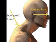Simple exercises to fix your Dowager's hump and address posture issues. Get rid of the bump at the base of your neck. Fitness Workouts, Easy Workouts, Fitness Tips, Fitness Motivation, Fitness Routines, Cardio Gym, Health And Wellness, Health Fitness, Health Tips