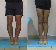 Operative correction of bow legs, knock-knees