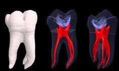 Dentaltown - Rootcanals in rear view mirror may appear larger than they are!
