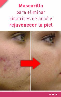 Mascarilla para eliminar cicatrices de acné y rejuvenecer la piel