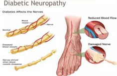 what causes peripheral neuropathy - treatment for small nerve neuropathy.motor neuropathy causes 1979381007 Nerve Damage Treatment, Nerve Damage Symptoms, Adrenal Cortex, Peripheral Neuropathy, Peripheral Nerve, Diabetic Neuropathy Treatment, Neuropathic Pain