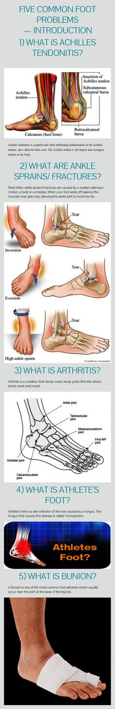 #Infographic - Five common foot problems:  1. Achilles tendonitis; 2. Ankle sprains/fractures; 3. Arthritis; 4. Athlete's foot; 5. Bunion.   #orthotics #FootOrthotics #CustomFootOrthotics
