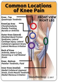 Arthritis is an ailment that affects people all over the world. It is very painful and it stems from the joints of the body becoming inflamed. Having arthritis in knee areas is particularly terrible since it can affect the way you wal Knee Ligament Injury, Knee Ligaments, Ligament Tear In Knee, Patellar Tendonitis Exercises, Knee Injury Treatment, Common Knee Injuries, K Tape, Knee Strengthening Exercises, How To Strengthen Knees