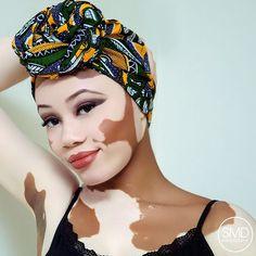 @turbanistaparis #longlivelocs #headwrap #vitiligo #beautiful