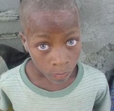 Black People With Blue, Green or Hazel Eyes Dark Skin Blue Eyes, Black With Blue Eyes, Cute Eyes, Pretty Eyes, Beautiful Eyes, Amazing Eyes, Blue Eyes Genetics, Blue Eye Facts, Charming Eyes