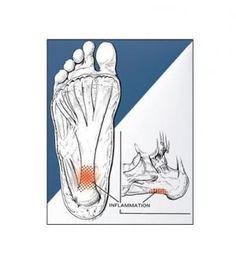 Como aliviar a dor de um esporão