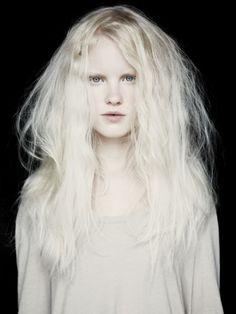 Albino blonde