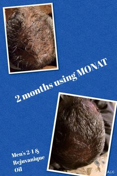 Who wants results like this?  2 months with Monat Mens line and Rejuveniqe Oil