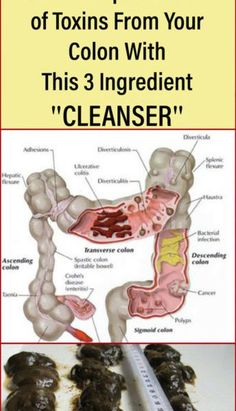 The colon is the last part of the large intestine, which main function is to produce and store feces and other waste from the body.