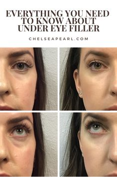 Have you ever considered using under eye fillers? Tear trough