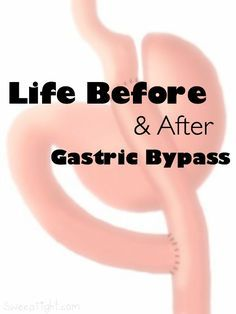 Life Before and After Gastric Bypass - Roux-en-Y - Gastric Sleeve Diet, Gastric Sleeve Surgery, Gastric Bypass Surgery, Bariatric Eating, Bariatric Recipes, Bariatric Surgery, Paleo Recipes, By Pass Gastrique, Bariatric Sleeve