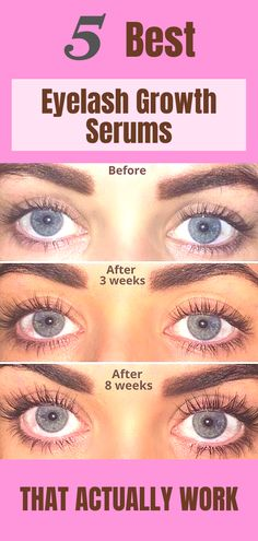 Best Eyelash Growth Serum, Eyelash Serum, Beauty Care, Beauty Skin, Beauty Makeup, Weight Loss Meals, Eyebrow Makeup, Skin Makeup, Beauty Secrets
