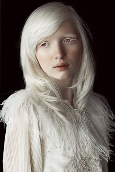 Nastya Zhidkova, albino Russian model.