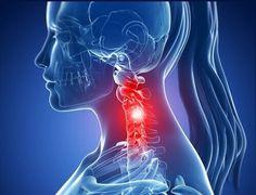 Cervical spondylosis what is it ?Cervical spondylosis non-drug therapy. Dor Cervical, Cervical Spondylosis, Spine Health, Squat Workout, Oil Mix, Massage Techniques, Nerve Pain, Pain Management, Natural Treatments