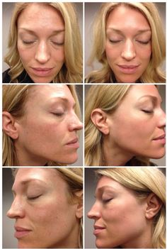Charla's results after one month using the REDEFINE Regimen.  #JessicaFawnBeauty #RodanandFields #RandF