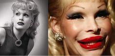 RENOVAÇÃO: TOP 10 Galeria de Horrores de celebridades vítimas...