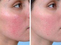 Behandlung und Tipps gegen Rosacea