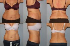 Kill Fat Cells Instantly Just By Freezing Them! (You'll Never Believe How It Works) - http://nifyhealth.com/kill-fat-cells-instantly-just-by-freezing-them-youll-never-believe-how-it-works/
