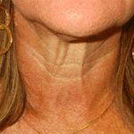 1 método simples para suavizar as rugas do pescoço! A receita…