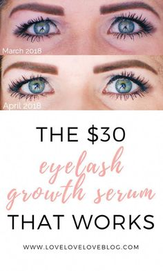 59d4a23a7 This super affordable eyelash growth serum works! It s available online and  you ll never