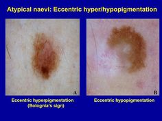 Eccentric peripheral hyperpigmentation is frequently found in MM. Atipical naevi with this type of pigmentation should be regarded as the most relevant simulators of MM and need excision or close monitoring.   A. Atypical naevus with reticular pattern, atypical pigment network and eccentric hyperpigmentation on the inferior area B. Atypical naevus with eccentric hypopigmentation on the left area suggestive of regression. This lesion needs excision to rule out MM. Histology was reported as…