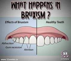 What happen in bruxism?