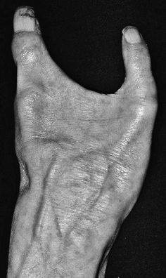Congenital absence of three fingers. Close-up of a patient's deformed hand lacking three fingers. Deformities like this are usually caused by damage to the developing foetus in the womb.