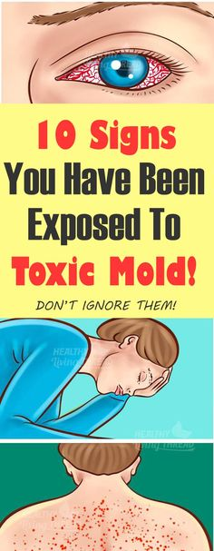 Healthcare infographic 10 Signs You Have Been Exposed To Toxic Mold! Infographic Description 10 Signs You Have Been Exposed To Toxic Mold! Medical Problems, Health Problems, Winter Allergies, Eyes Problems, Abdominal Pain, Health Advice, Health Care, Healthy Tips, Healthy Beauty