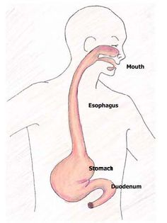 Eosinophilic esophagitis: Kids With Food Allergies