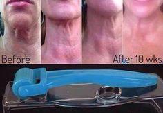 Rodan+Fields AMP MD roller. Best results with the REDEFINE regimen. Go to www.thamle.myrandf.com for more information! #R+F #changingskinchanginglives #skincare