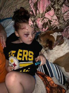 A Christmas surprise turned horribly wrong for this loving family. Dog Attack, Family Dogs, Special Needs, Pitbulls, Christmas, Xmas, Pit Bulls, Pitbull, Navidad