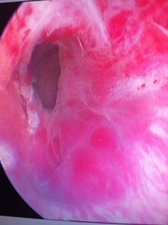 Hematoma eyaculador izquierdo