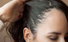 أسباب تساقط الشعر وعلاجه طبيعياً