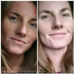 In my last post I shared Leslie's results after using R+F Unblemish first then Reverse. Now Check out Shelley's results after using Reverse! With Reverse you can clean the slate and bring out your skin's natural beauty and glow! Does your skincare deliver results like Shelley's? Message me ~ Let's chat! http://iarman.myrandf.com