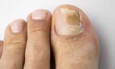 Remedies For Toenail Fungus onychomycosis with fungal nail infection - Fight toenail fungus at its source with these six simple toenail fungus home remedies. Nail fungus can be embarrassing, so start treating yours today. Toenail Fungus Home Remedies, Toenail Fungus Treatment, Toe Fungus, Fungal Nail Infection, Vicks Vaporub, Natural Home Remedies, Health And Wellness, Natural Remedies, Health And Fitness