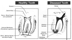 Biological Dentistry | DR Vizcarra Root Canals