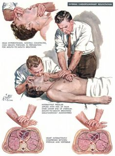 """An medical illustration by surgeon Frank H. Netter (1906-1991), the """"Normal Rockwell of Medical Illustration."""" Netter's work is particularly noteworthy for adding the human element in character's faces."""