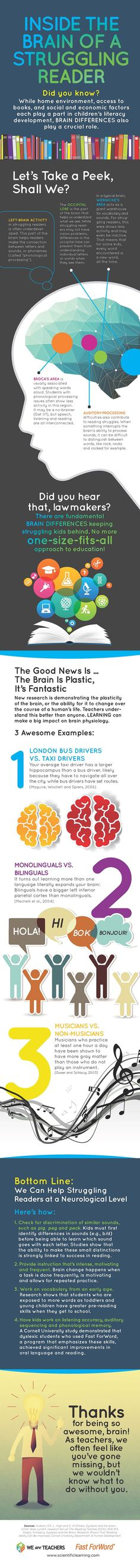 #Infographic: Inside the Brain of a Struggling Reader #WeAreTeachers