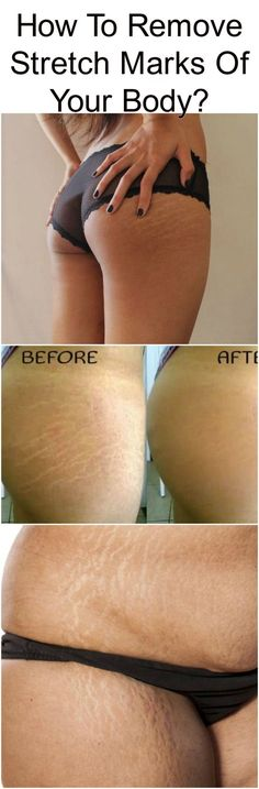 How To Remove Stretch Marks Of Your Body