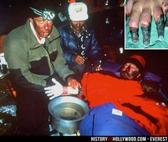 Beck Weathers severe frostbite is visible by way of his frozen dead hand and frostbitten nose. He is portrayed by Josh Brolin in the 2015 Mt. Everest movie. See post-amputation pics here: http://www.historyvshollywood.com/reelfaces/everest/