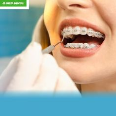 Don't freak out if your teeth feel loose with braces. Oral Health, Braces, Dental, Teeth, Shit Happens, Feelings, Dental Health, Button Suspenders, Tooth