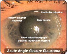 acute angle- closure glaucoma - HEENT - ER - eye