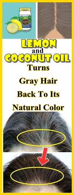 gesundes Blatt cbd Öl – Baking Soda Shampoo For Hair Growth – Haare Baking Soda Dry Shampoo, Baking Soda For Dandruff, Honey Shampoo, Baking Soda And Honey, Baking Soda For Hair, Baking Soda Water, Natural Coconut Oil, Coconut Oil For Acne, Shampoo For Curly Hair