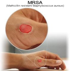 Mrsa Natural treatments are Manuka Honey from Australia & New Zealand, Olive leaf Extract, Neem Oil, Tea Tree Oil, & Turmeric.